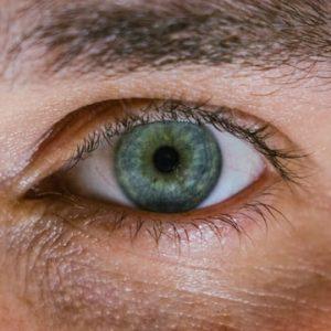 blepharoplastie cernes poches sous les yeux